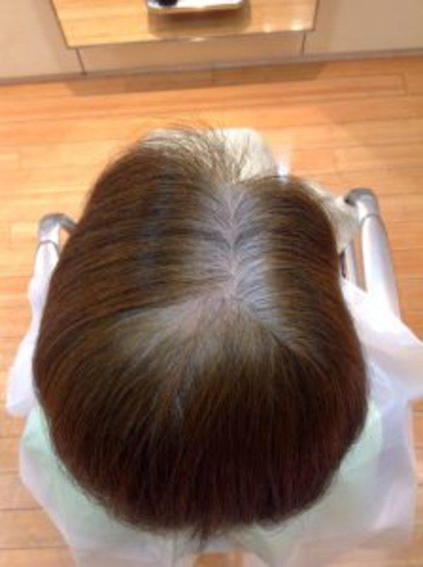 本日のお客様10|へアマニキュア(酸性カラー)で白髪染め[実例・写真あり]サムネイル